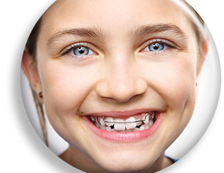 Metal Braces versus Invisalign